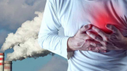 Air-Pollution-Increases-Risk-of-Atherosclerosis-and-Arterial-Damage
