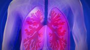 Artificial Intelligence Can Help Detect Lung Cancer Even in the Early Stages